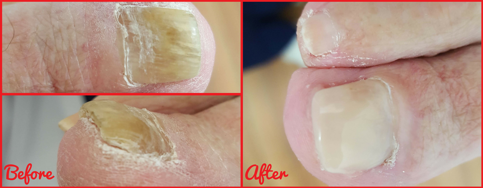 A Day in the Life of a Podiatrist: Gel Nail Reconstruction